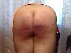 Severe amateur caning
